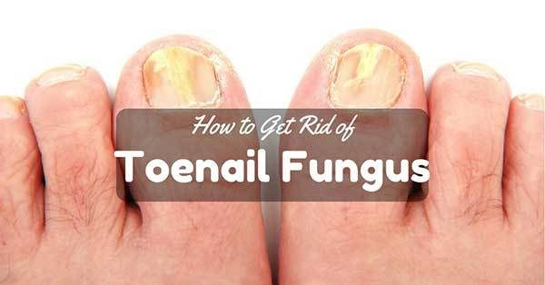 Effective Remedies Fungus Fast